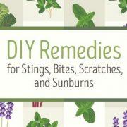 Natural & DIY Remedies For Bug Bites, Stings, Sunburns, & Scratches