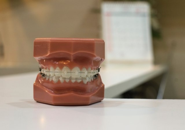 Ceramic Braces vs. Traditional Braces: What's the Difference?